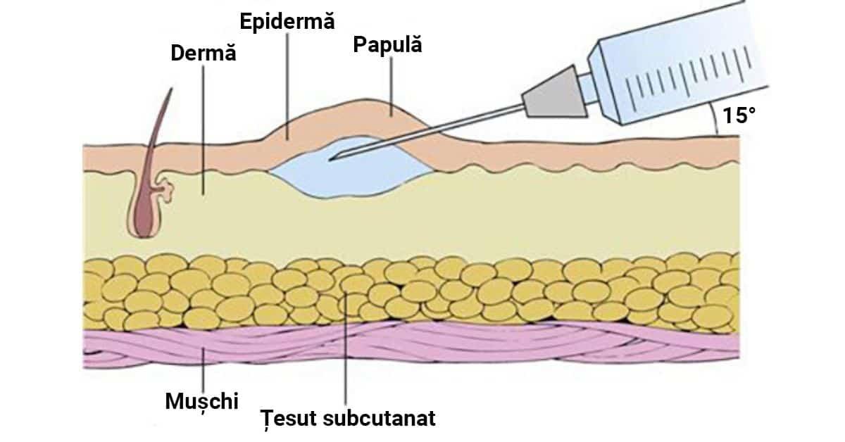 injecția-intradermică