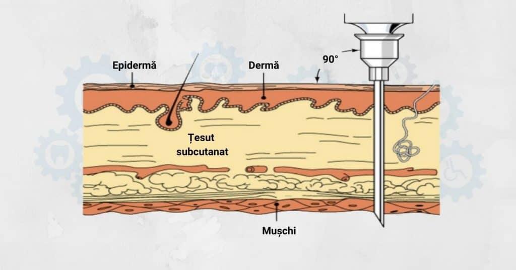 injectia-intramusculara