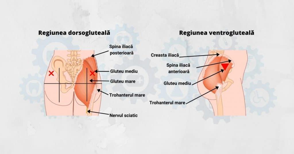 Regiunile-dorsogluteala-ventrogluteala