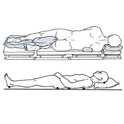 decubit-lateral-si-dorsal