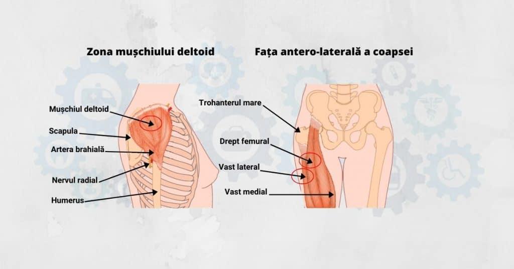 zona-deltoida-si-fata-antero-laterala-a-coapsei