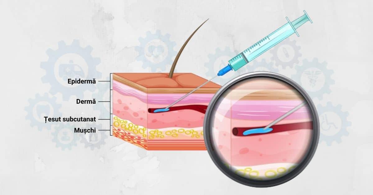 numele injecțiilor din varicoză