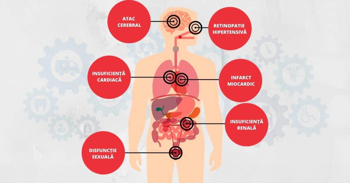 hipertensiunea-arterială