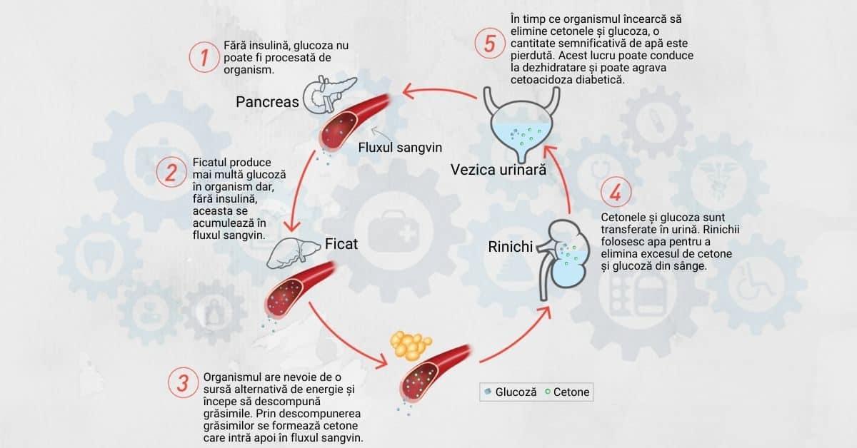 cetoacidoza-diabetică