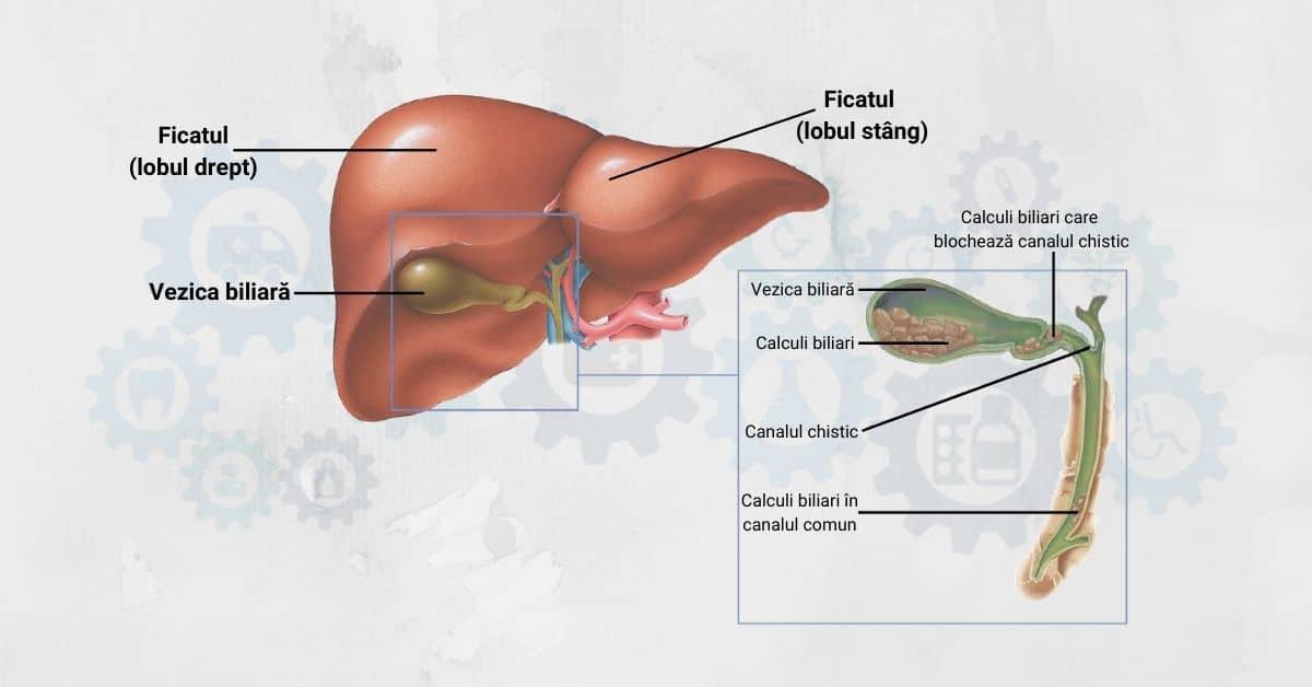 Conducte biliare giardia