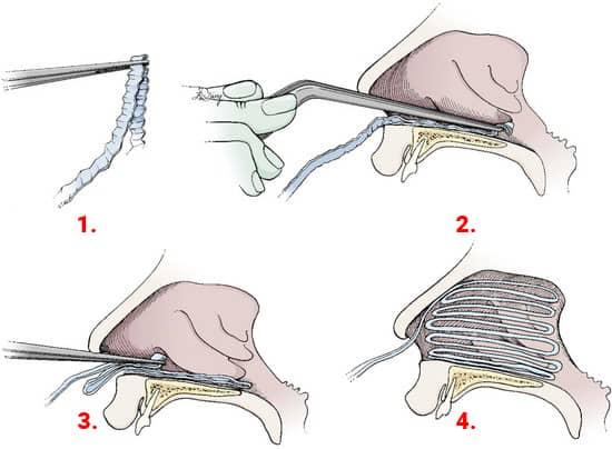Tamponament-anterior-epistaxis
