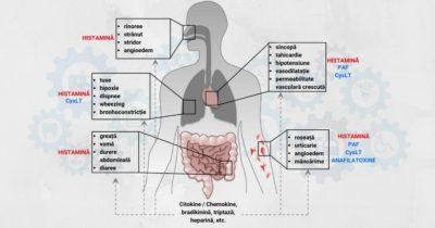 Intervenții-de-urgență-în-șocul-anafilactic
