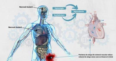 Intervenții-de-urgență-în-hipovolemie