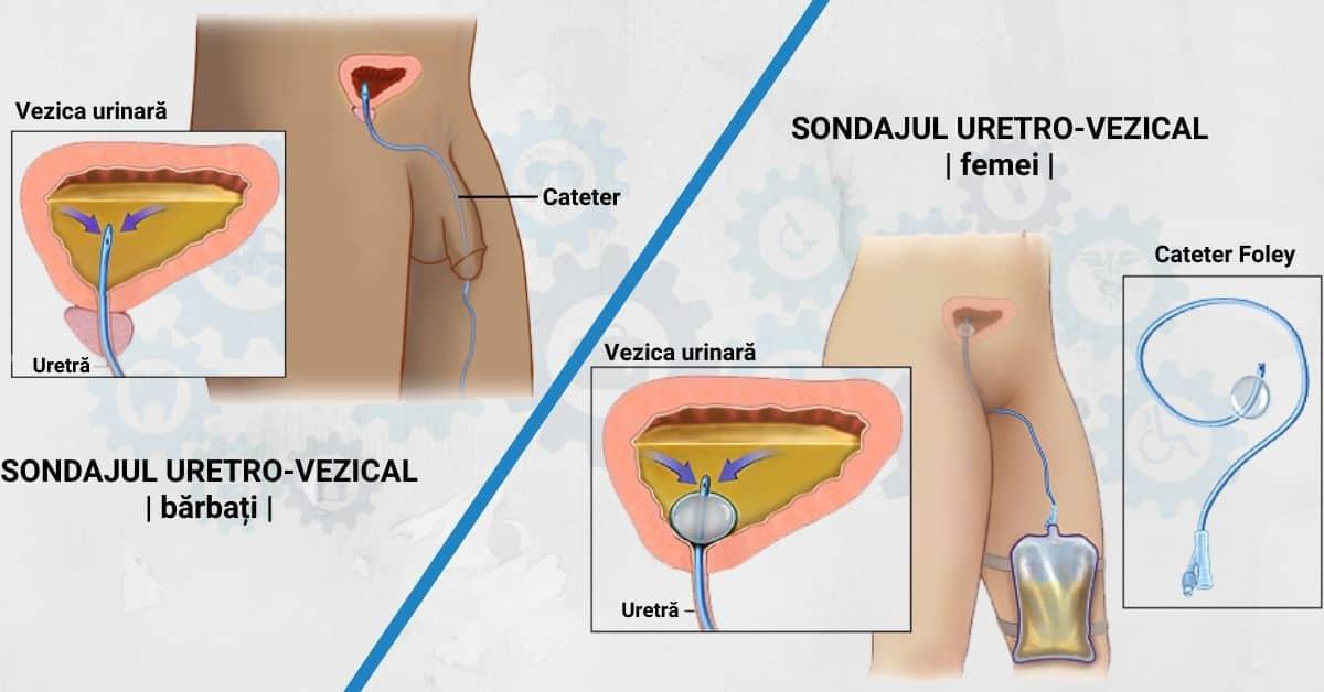 Intervenții-de-urgență-în-retenția-acută-de-urină