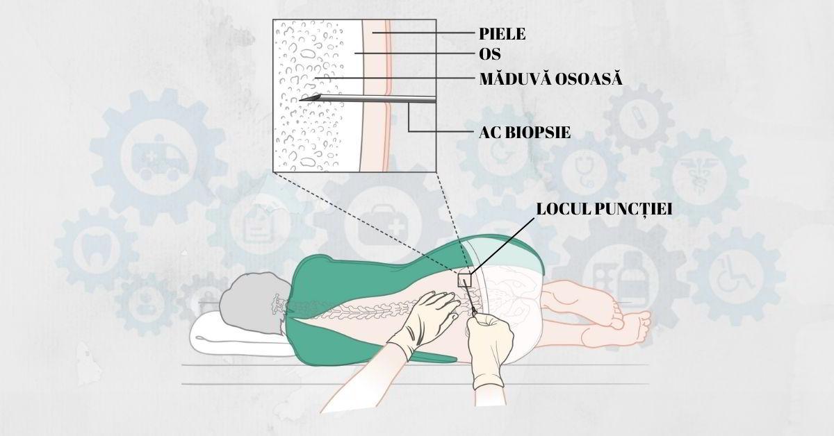 Punctia-osoasa-si-biopsia-medulara-Mielograma
