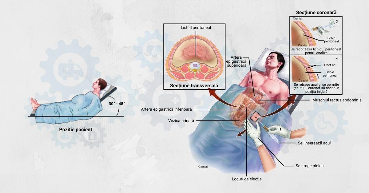 Paracenteza și rolul asistentului medical în puncţia peritoneală
