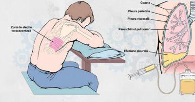 Toracocenteza-si-rolul-asistentului-medical-in-punctia-pleurala