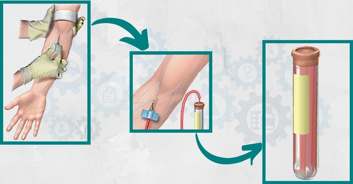Recoltarea-hemoculturii-AsiMed