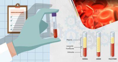 Recoltarea-sangelui-pentru-hemoleucograma-completa-HLG